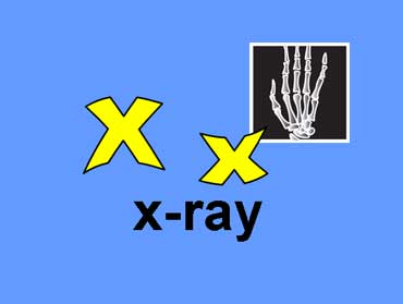 X x - X-ray